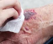 Ouderen vallen en verwonden zich